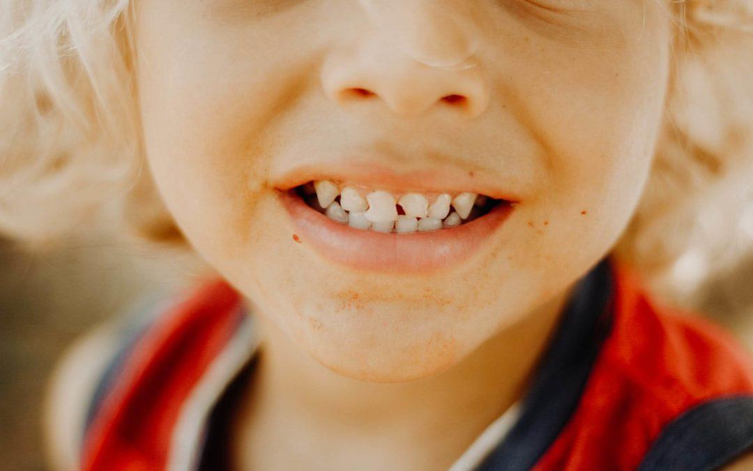 Fluoryzacja zębów: co to, na czym polega? Tak czy nie?