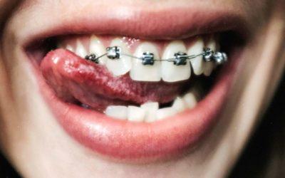Jak i czym myć zęby z aparatem ortodontycznym?